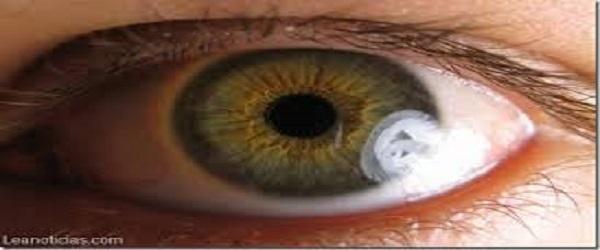 sintomas de cataratas en la vista
